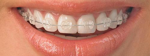 adultclearbraces""""