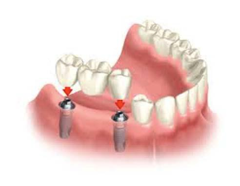 multipletoothimplants""""